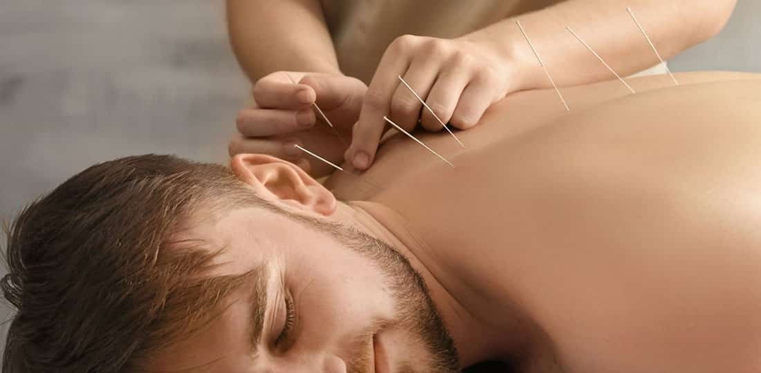 Etirement du dos surfeur-Acupuncture